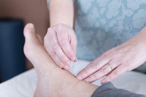 Acupuncture-Foot-1
